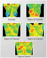Breast_thermography_3